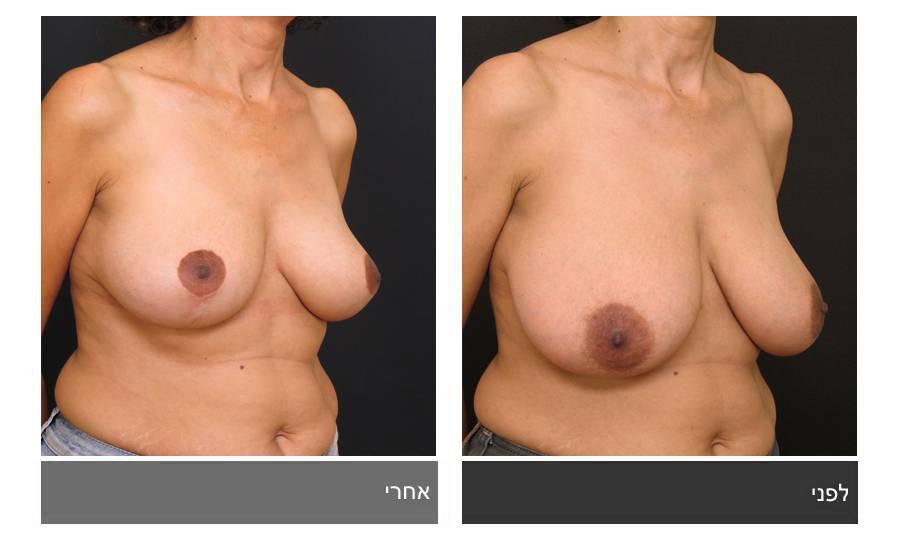 ניתוח הקטנת חזה - לפני ואחרי 9