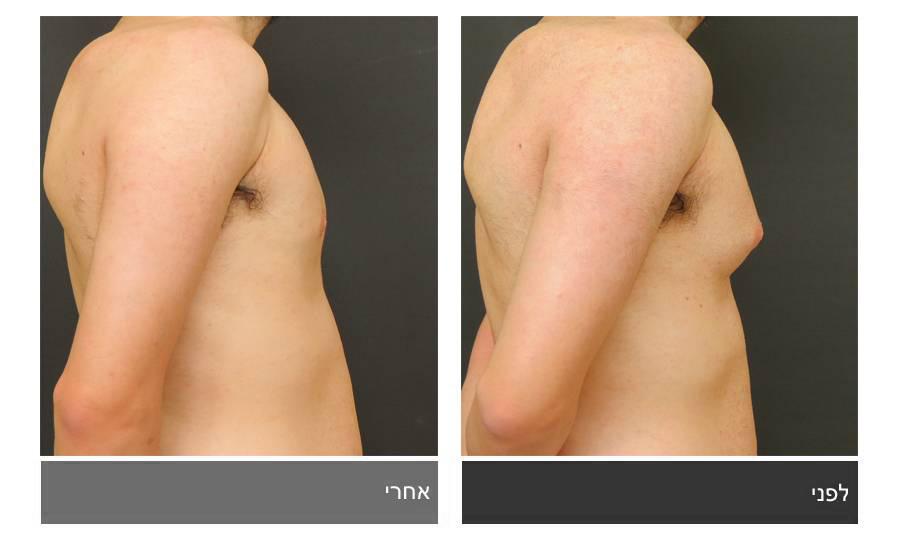 גניקומסטיה - תמונות לפני ואחרי 8