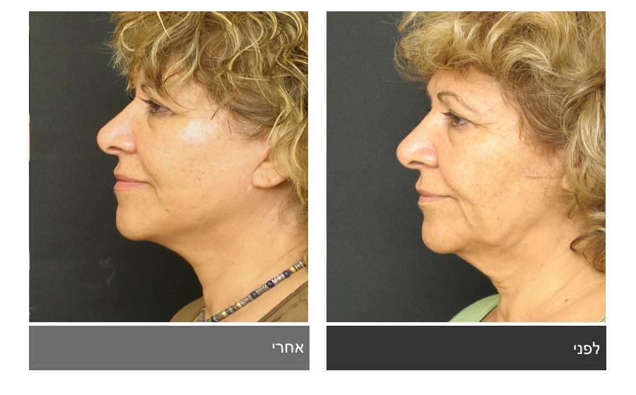 מתיחת פנים - תמונות לפני ואחרי 8
