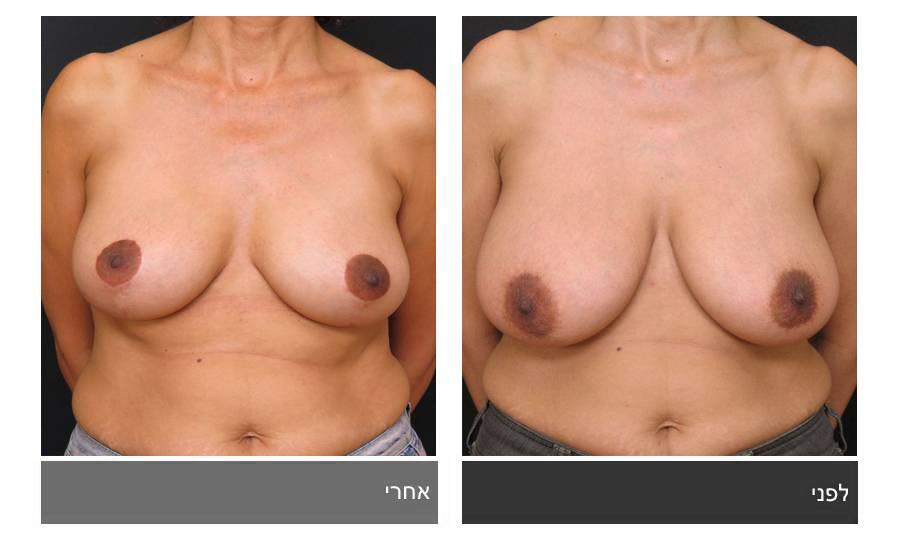 ניתוח הקטנת חזה - לפני ואחרי 10