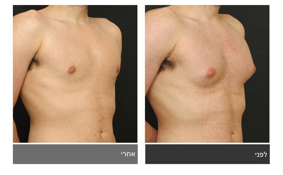 גניקומסטיה - תמונות לפני ואחרי 9