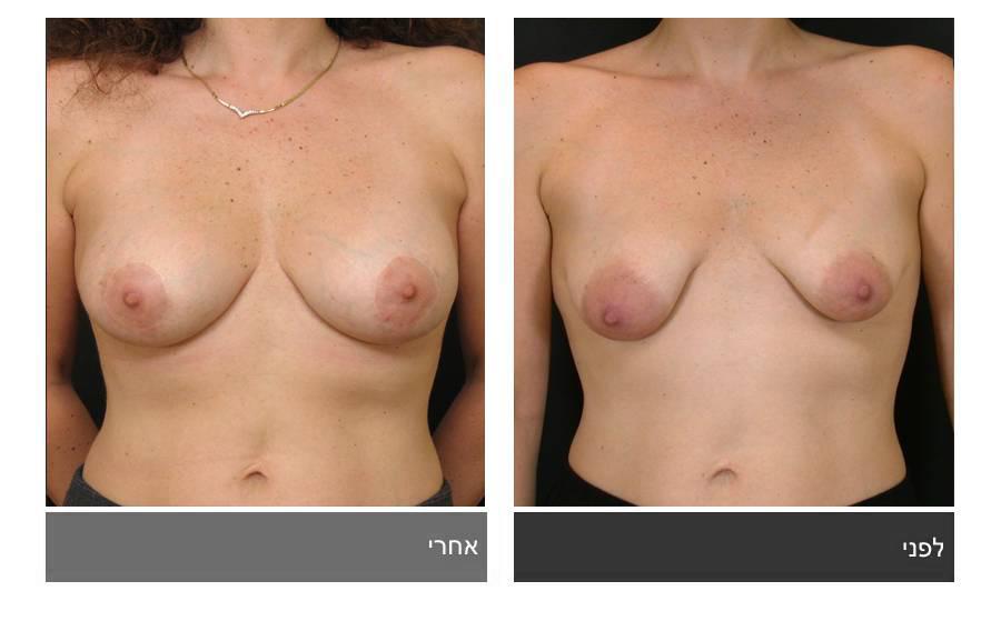ניתוח חזה טובולרי - תמונות לפני ואחרי 9