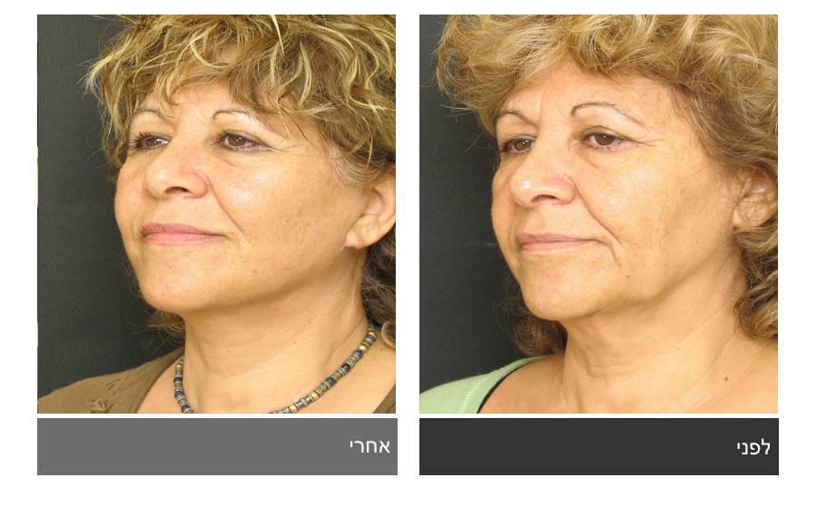 מתיחת פנים - תמונות לפני ואחרי 9