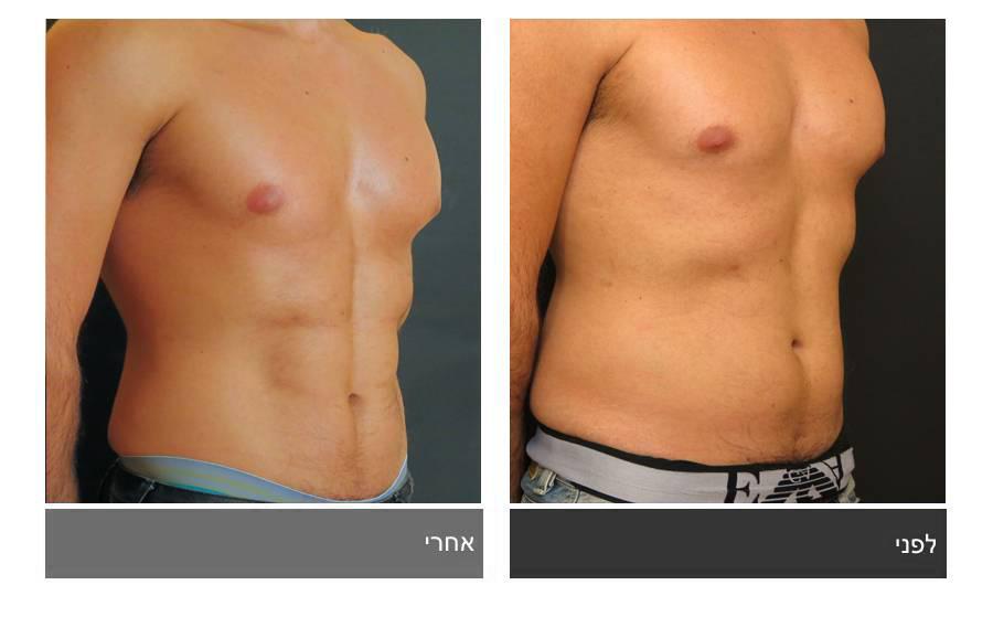 ניתוח קוביות בבטן - תמונות לפני ואחרי 9