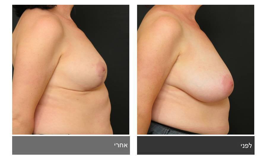 ניתוח הקטנת חזה - לפני ואחרי 11