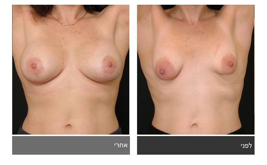 ניתוח חזה טובולרי - תמונות לפני ואחרי 10