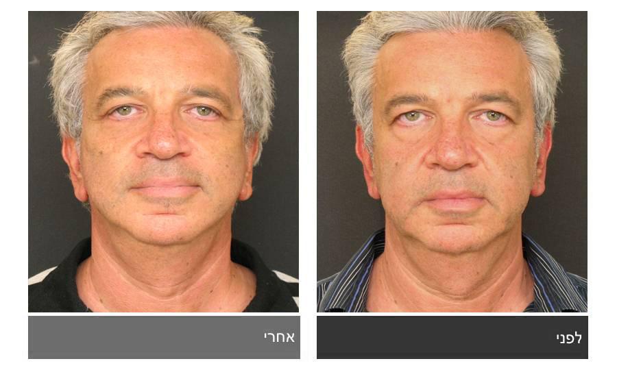 מתיחת פנים - תמונות לפני ואחרי 10