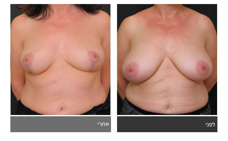 ניתוח הקטנת חזה - לפני ואחרי 12
