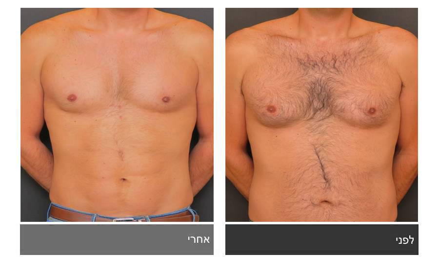 גניקומסטיה - תמונות לפני ואחרי 11