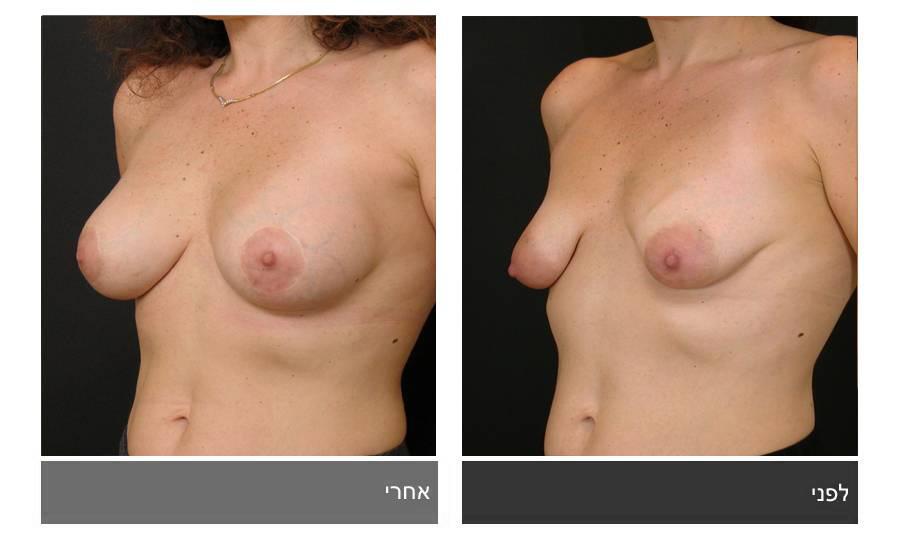 ניתוח חזה טובולרי - תמונות לפני ואחרי 11