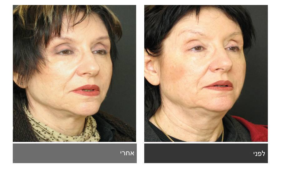 מתיחת פנים - תמונות לפני ואחרי 11