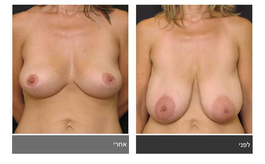 ניתוח הקטנת חזה - לפני ואחרי 13