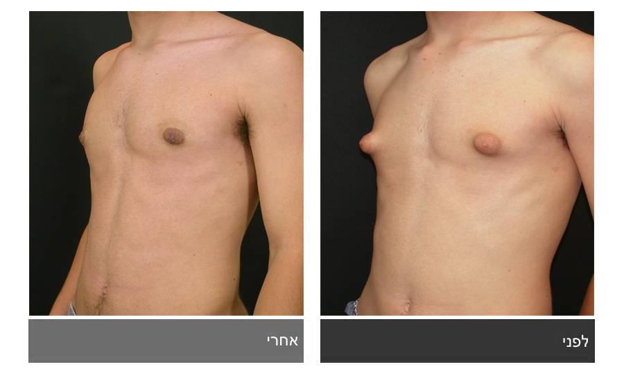 גניקומסטיה - תמונות לפני ואחרי 12