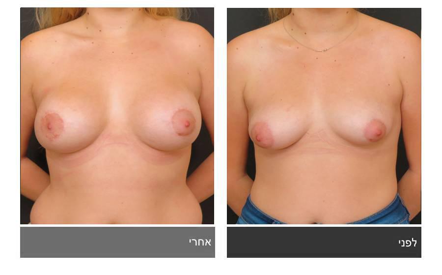 ניתוח חזה טובולרי - תמונות לפני ואחרי 12