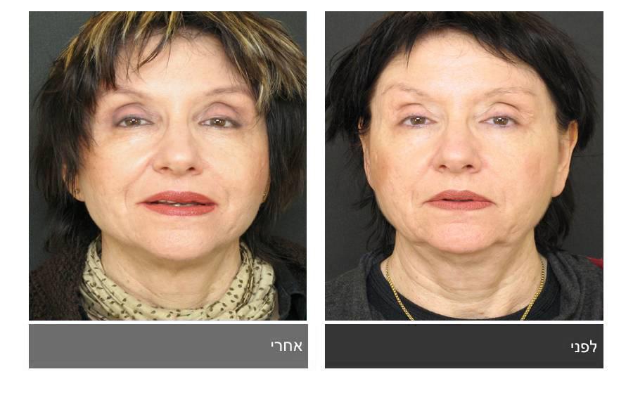 מתיחת פנים - תמונות לפני ואחרי 12