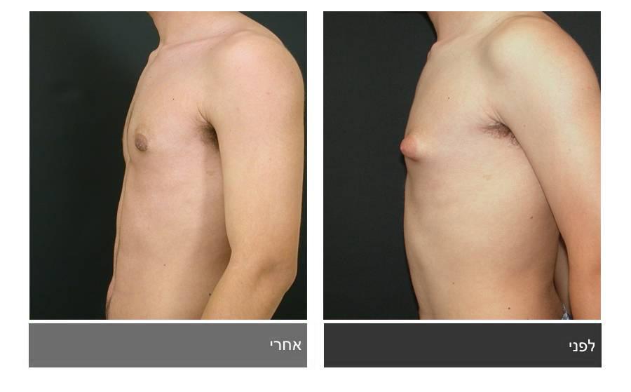 גניקומסטיה - תמונות לפני ואחרי 13