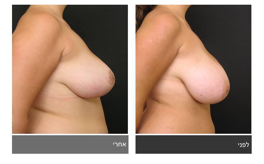 ניתוח הקטנת חזה - לפני ואחרי 14