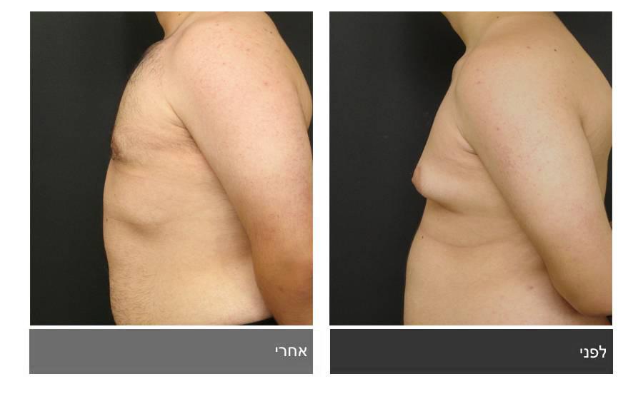 גניקומסטיה - תמונות לפני ואחרי 14