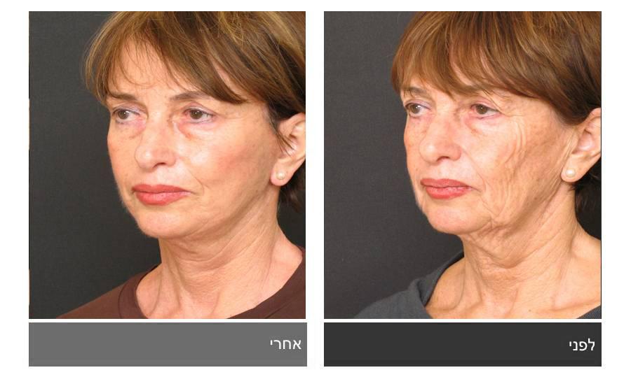 מתיחת פנים - תמונות לפני ואחרי 13