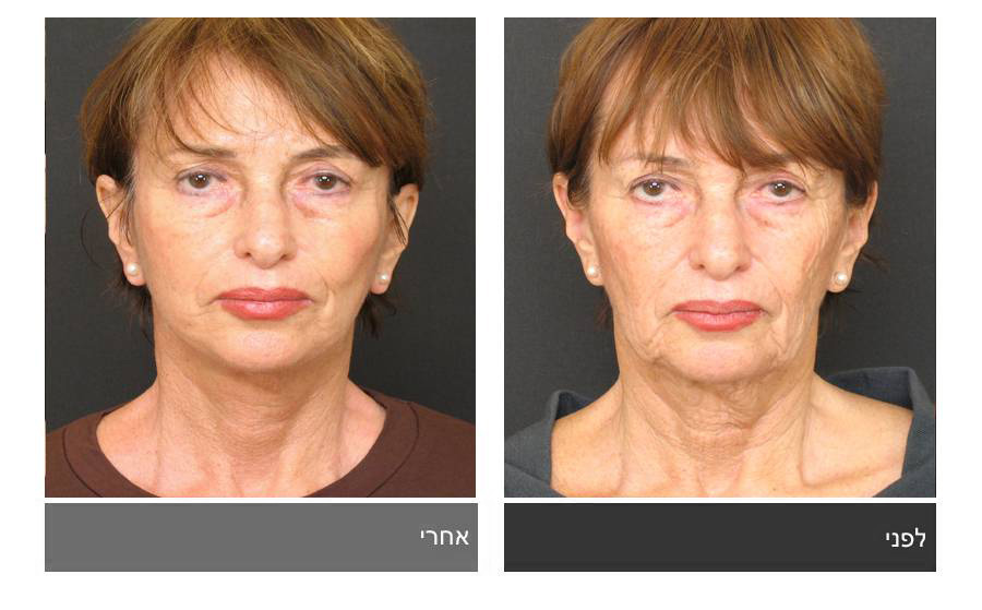 מתיחת פנים - תמונות לפני ואחרי 14