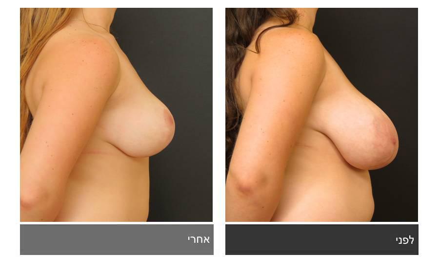 ניתוח הקטנת חזה - לפני ואחרי 15