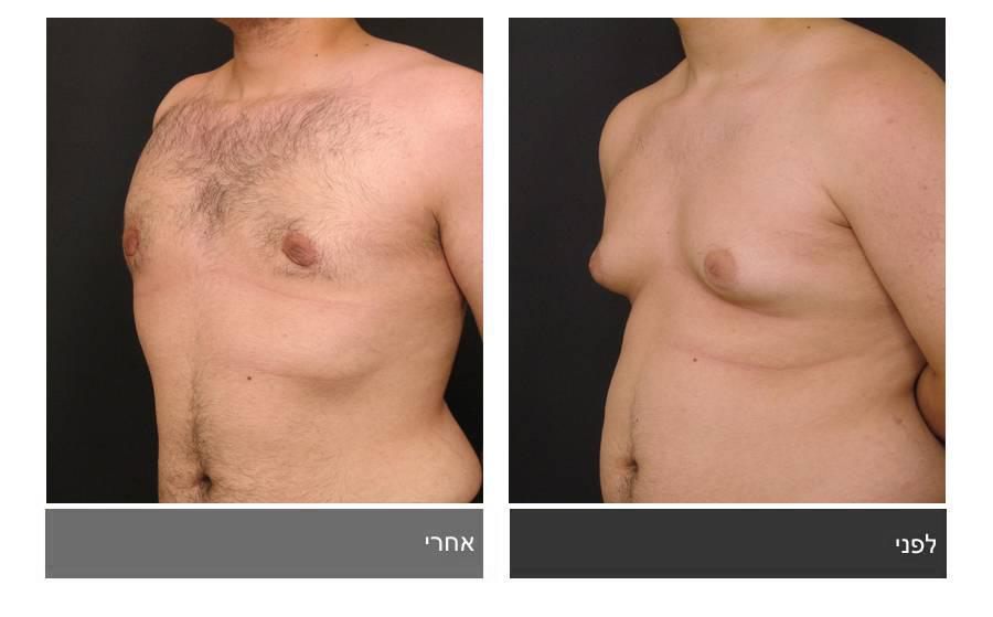 גניקומסטיה - תמונות לפני ואחרי 15