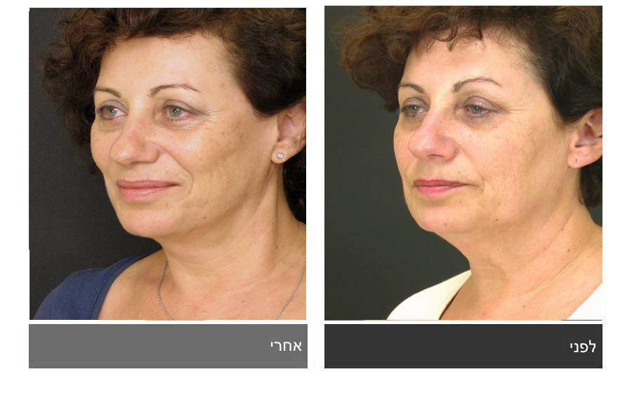 מתיחת פנים - תמונות לפני ואחרי 15