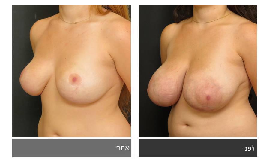 לפני ואחרי ניתוח הקטנת חזה