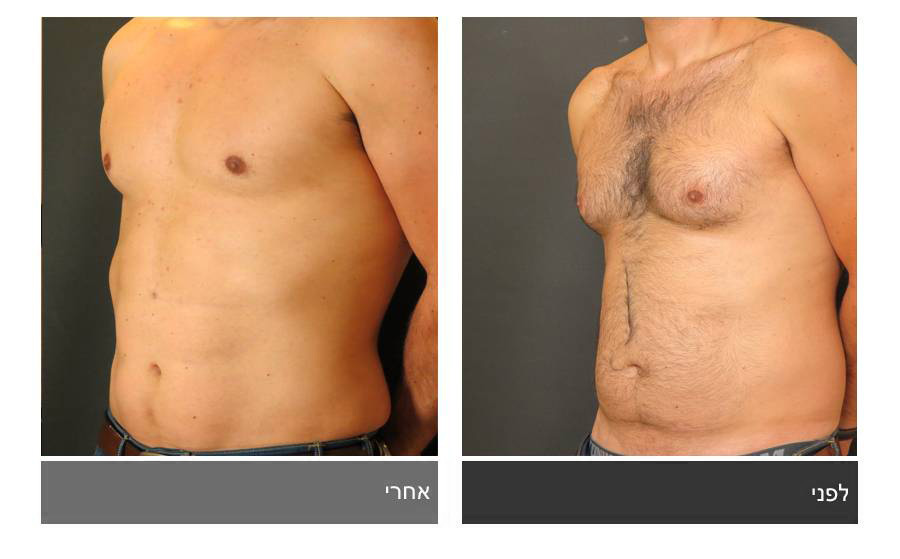 ניתוח קוביות בבטן - תמונות לפני ואחרי 13
