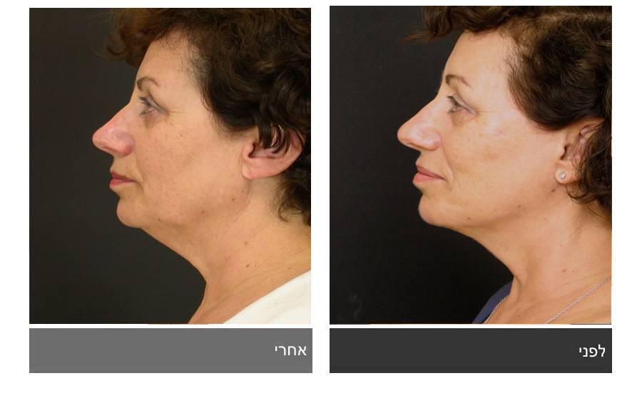 מתיחת פנים - תמונות לפני ואחרי 16