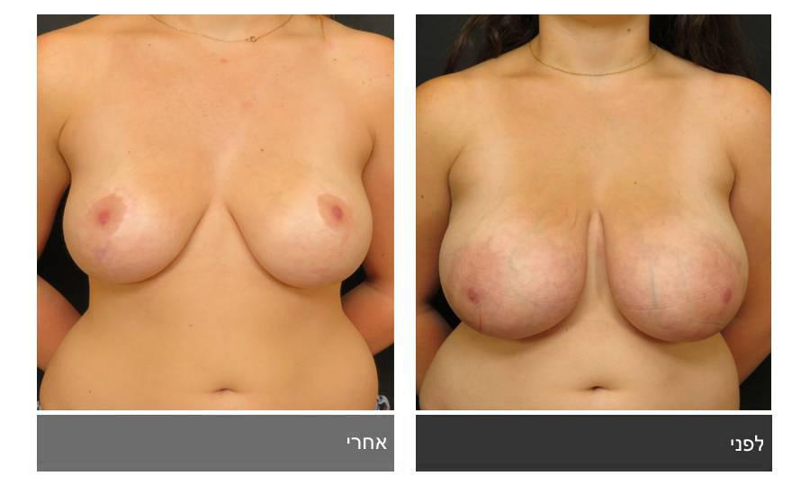 ניתוח הקטנת חזה - לפני ואחרי 17