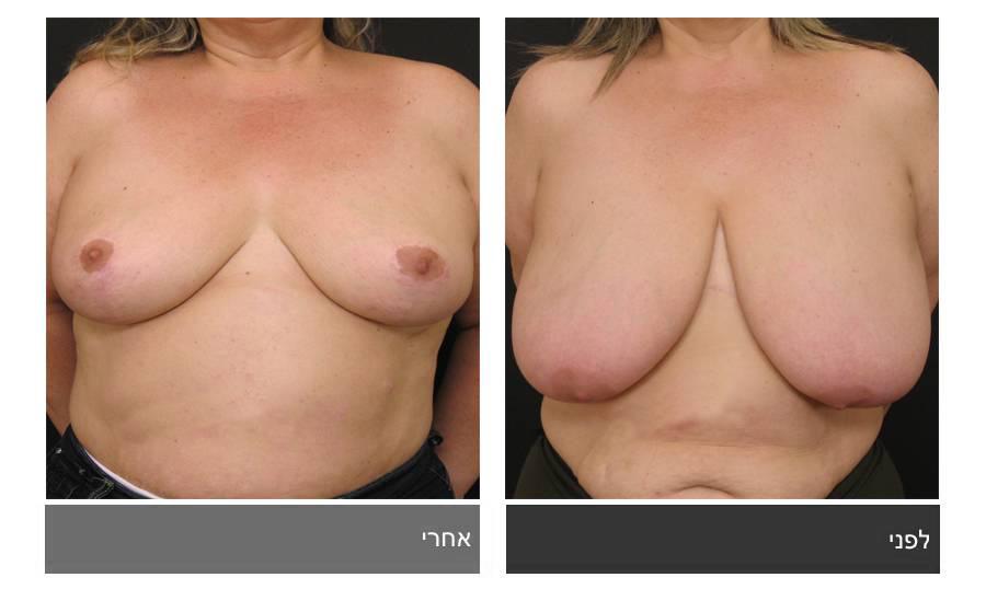 ניתוח הקטנת חזה - לפני ואחרי 1