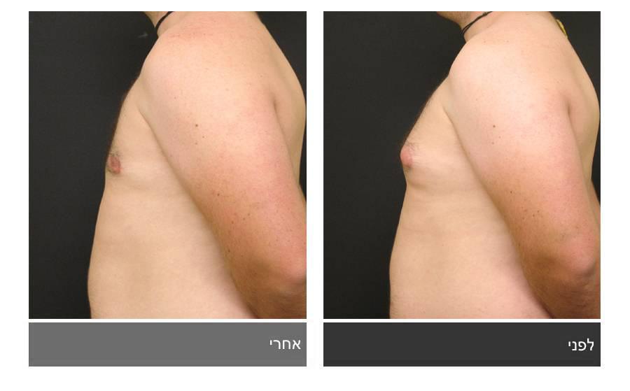 גניקומסטיה - תמונות לפני ואחרי 1