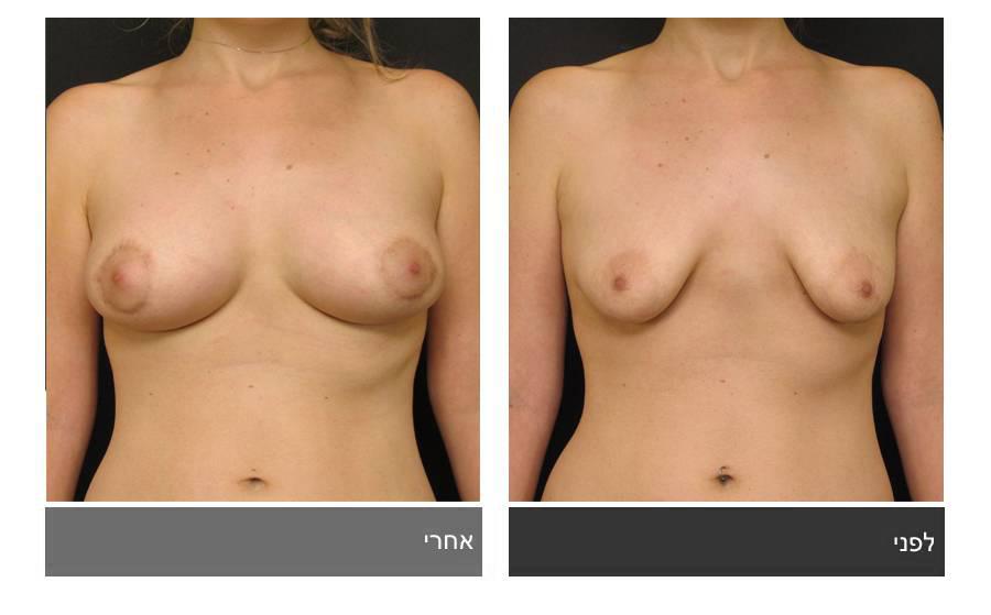 ניתוח חזה טובולרי - תמונות לפני ואחרי 1