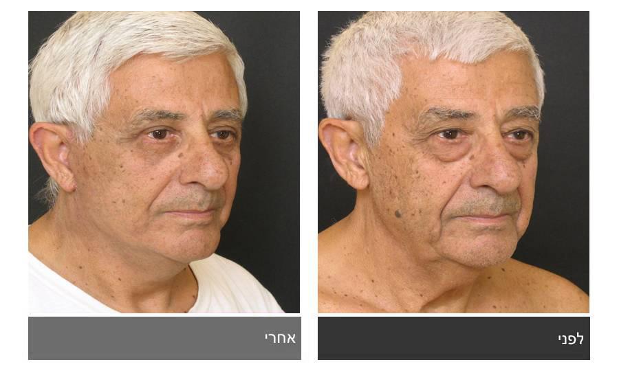 מתיחת פנים - תמונות לפני ואחרי 1