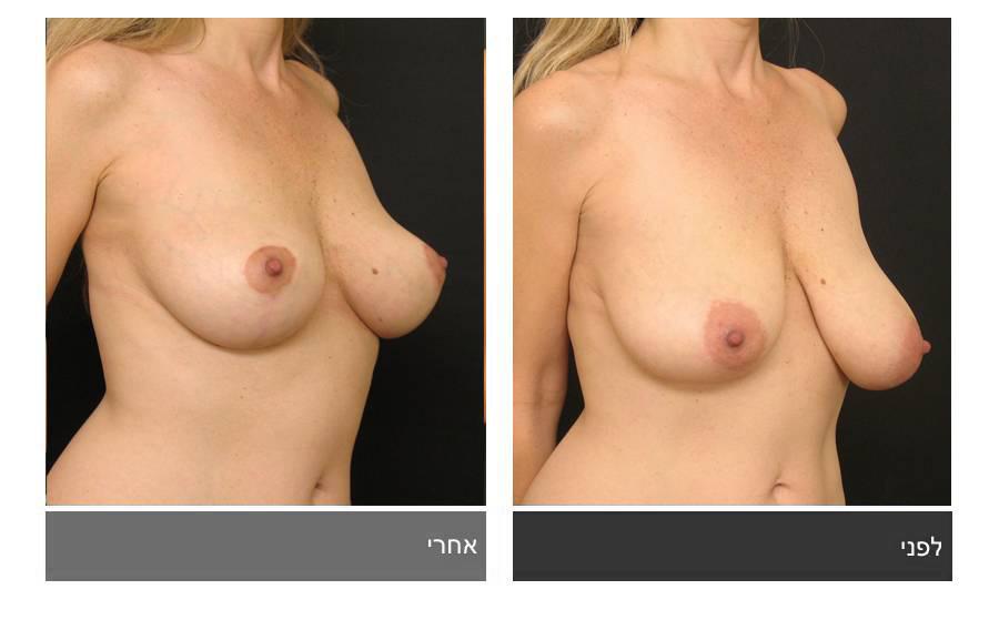 ניתוח הקטנת חזה - לפני ואחרי 18