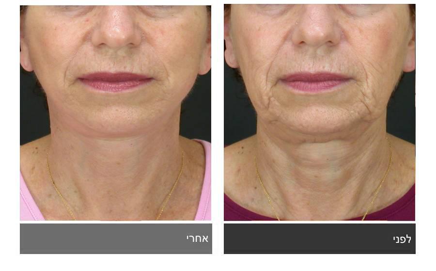 מתיחת פנים - תמונות לפני ואחרי 17