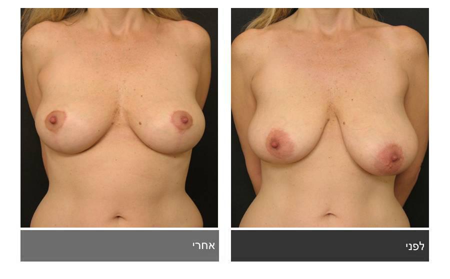 ניתוח הקטנת חזה - לפני ואחרי 19