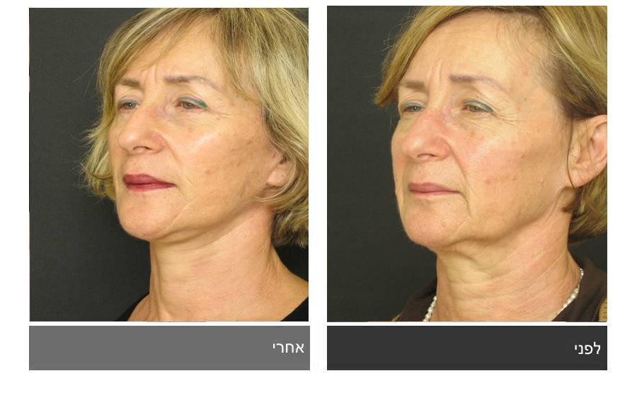 מתיחת פנים - תמונות לפני ואחרי 18