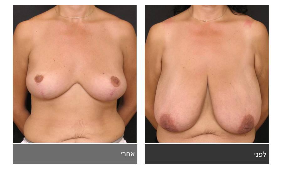 ניתוח הקטנת חזה - לפני ואחרי 20