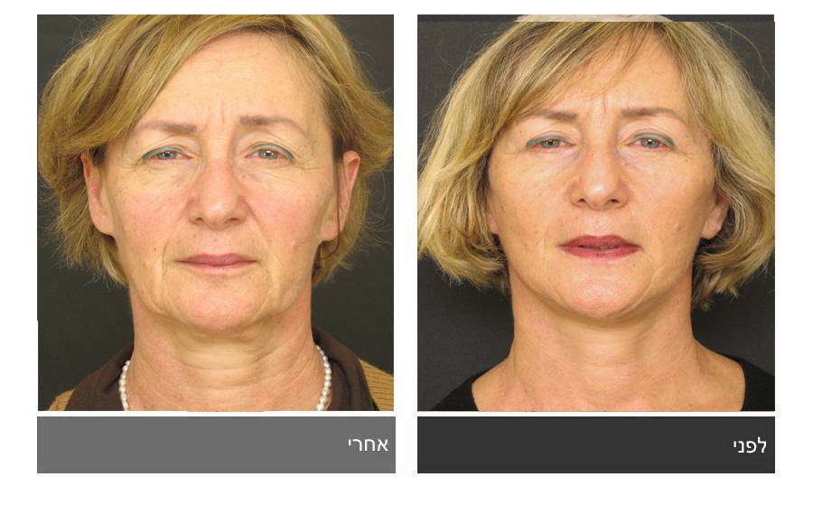 מתיחת פנים - תמונות לפני ואחרי 19