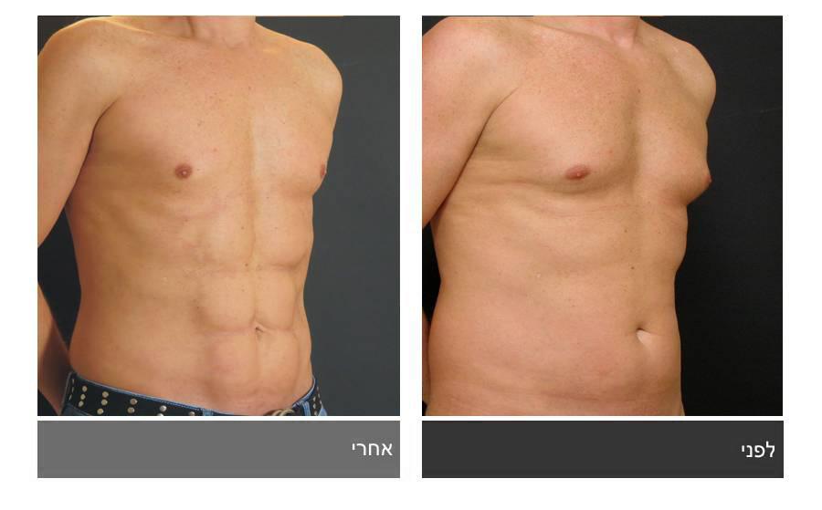 ניתוח קוביות בבטן - תמונות לפני ואחרי 17