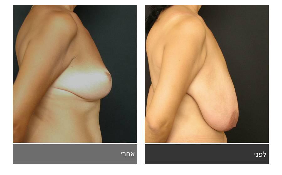 ניתוח הקטנת חזה - לפני ואחרי 21
