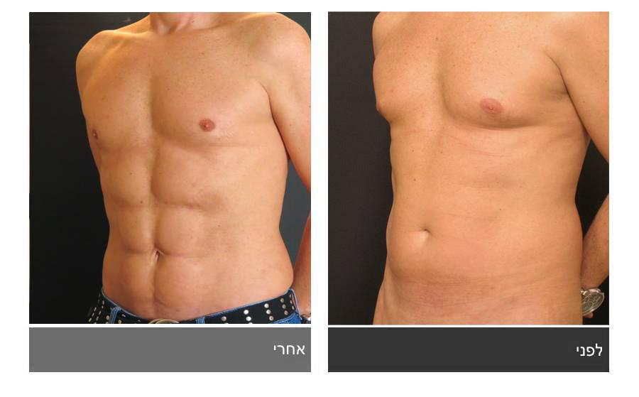 לפני ואחרי ניתוח לעיצוב קוביות בבטן