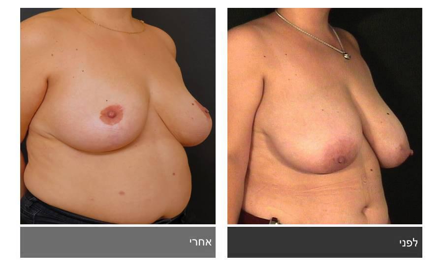 ניתוח הקטנת חזה - לפני ואחרי 22
