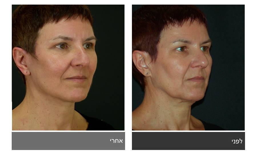 מתיחת פנים - תמונות לפני ואחרי 20