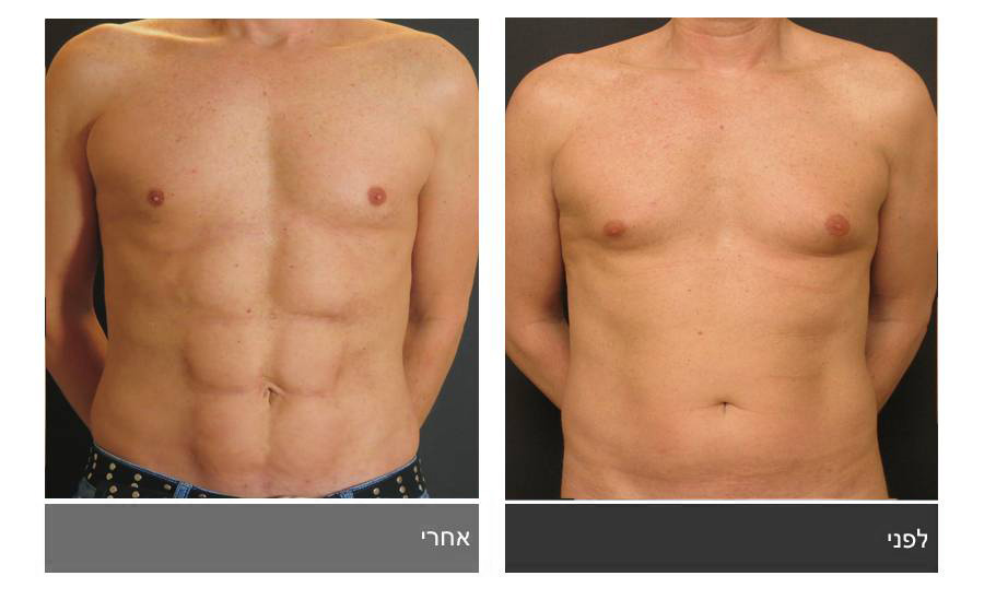 ניתוח קוביות בבטן - תמונות לפני ואחרי 19