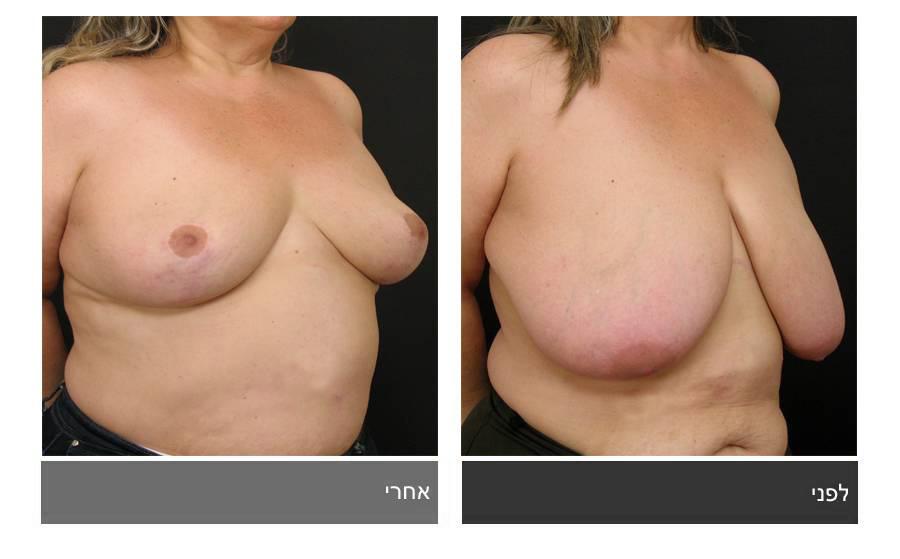 ניתוח הקטנת חזה - לפני ואחרי 2