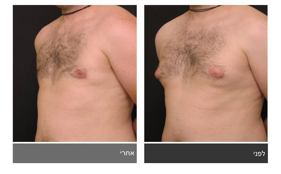 גניקומסטיה - תמונות לפני ואחרי 2