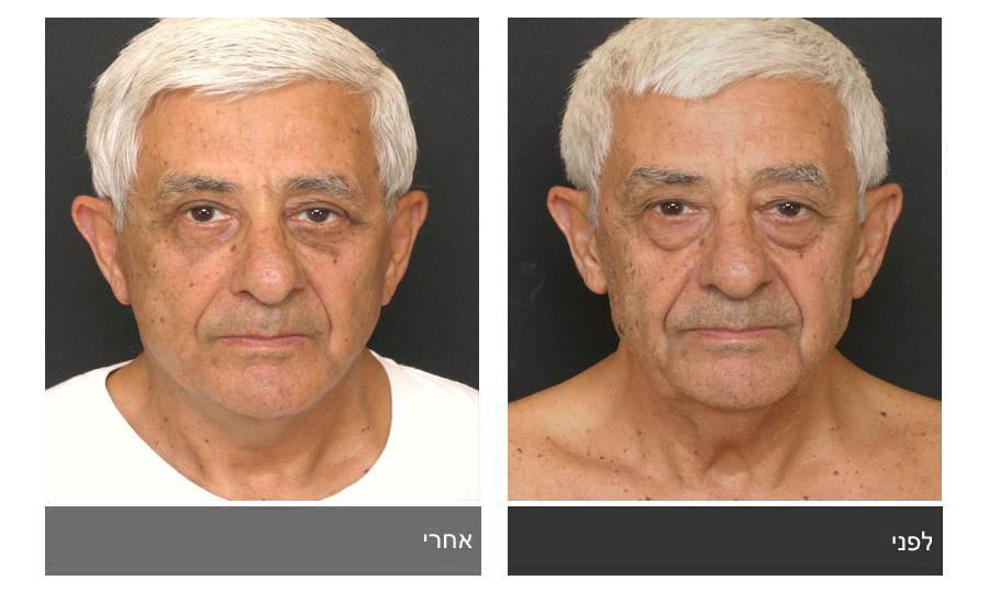 מתיחת פנים - תמונות לפני ואחרי 2